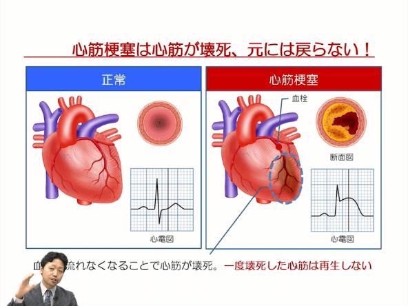 第3部:虚血性心疾患