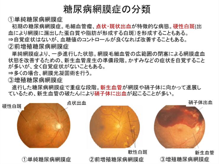 第2部:後眼部疾患の病態と治療