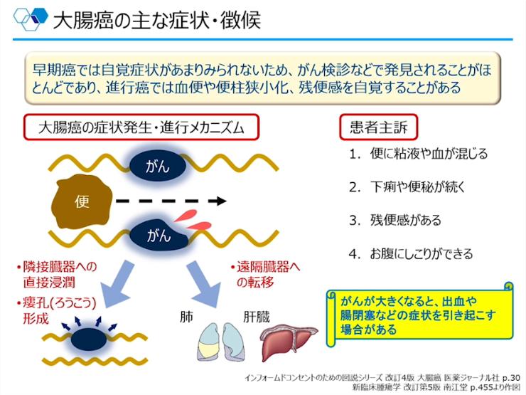 第1部:大腸癌の基礎講座