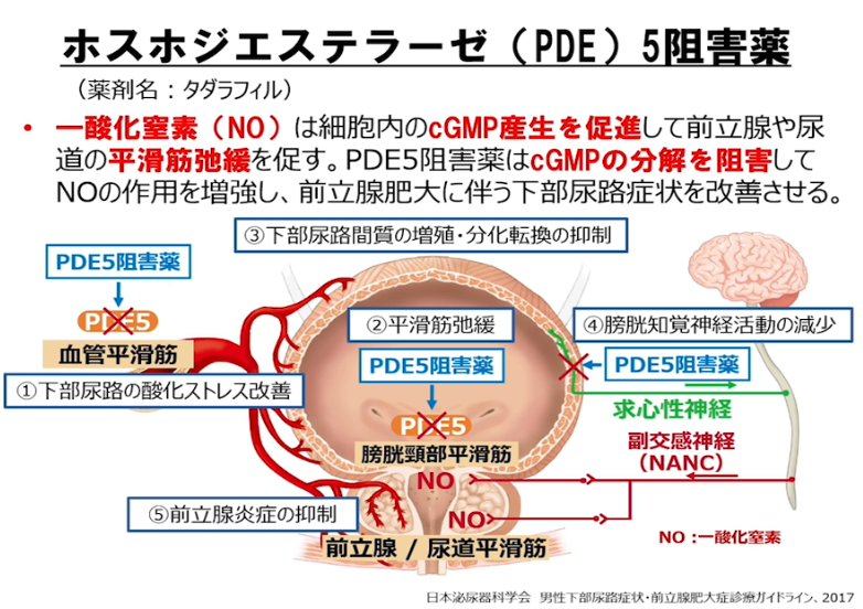 下部尿路症状(LUTS)に対する薬物療法の画像