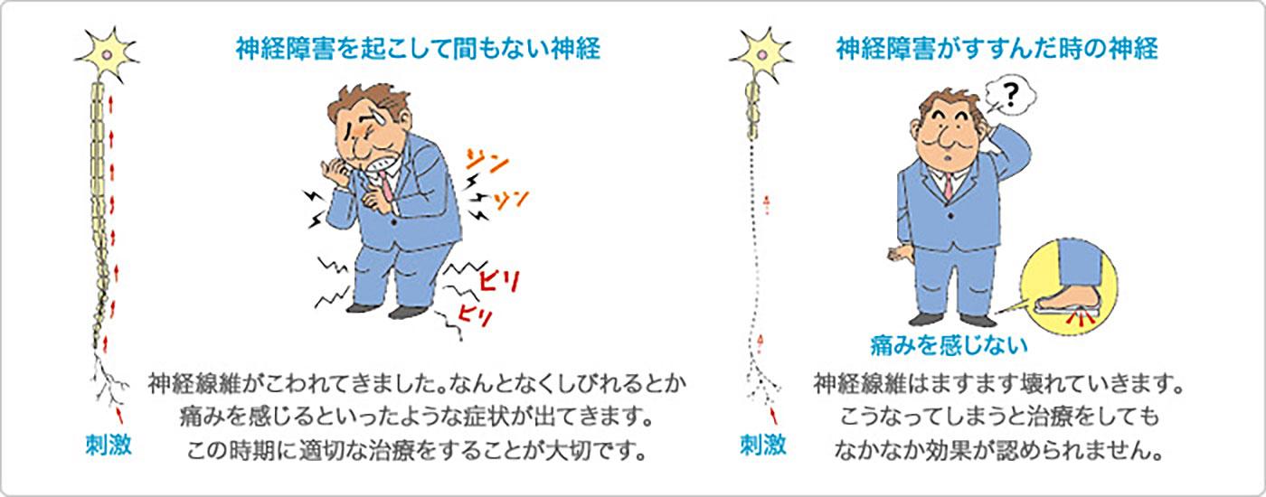 第14回 糖尿病の合併症を整理しよう1 (1)糖尿病性神経障害の画像