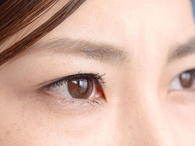 第15回 糖尿病の合併症2「眼」と「腎」の画像(2)