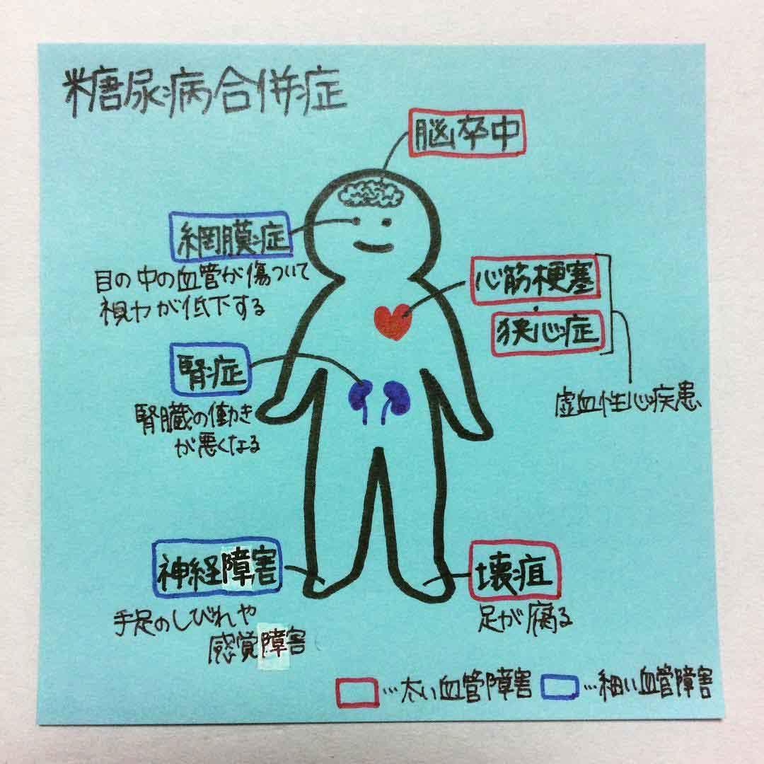 イラストで覚えやすい!薬剤師が選んだ「薬学生の勉強ノート」糖尿病合併症は、血管障害を色分けしての画像